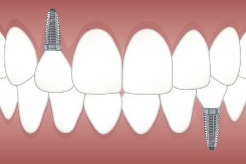 Dental Implant Manteca dentist